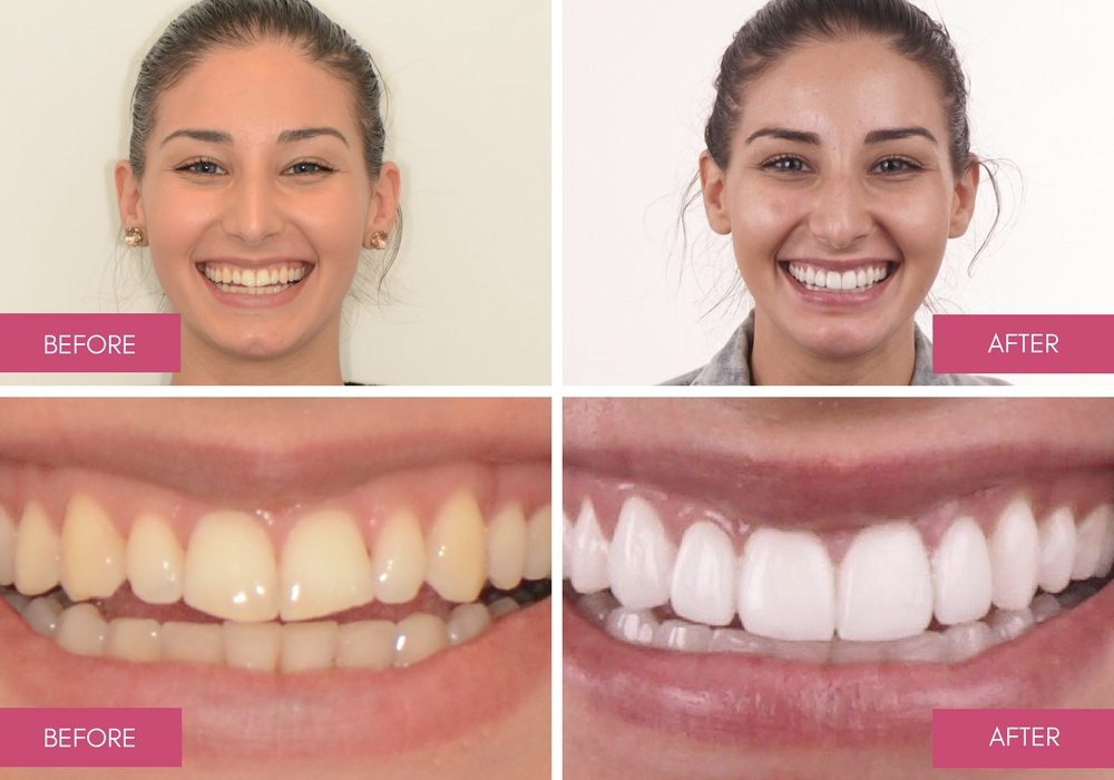 Tooth Whitening Melbourne A Procedure Safe Effective