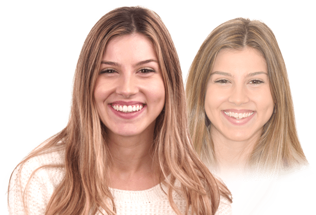 Invisalign Provider Melbourne - Alternative to Braces - Dental Boutique
