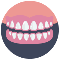 Dentures Alternatives