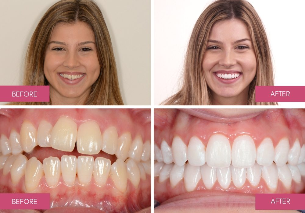 Before And After Dental Treatment Gallery Melbourne Dentists