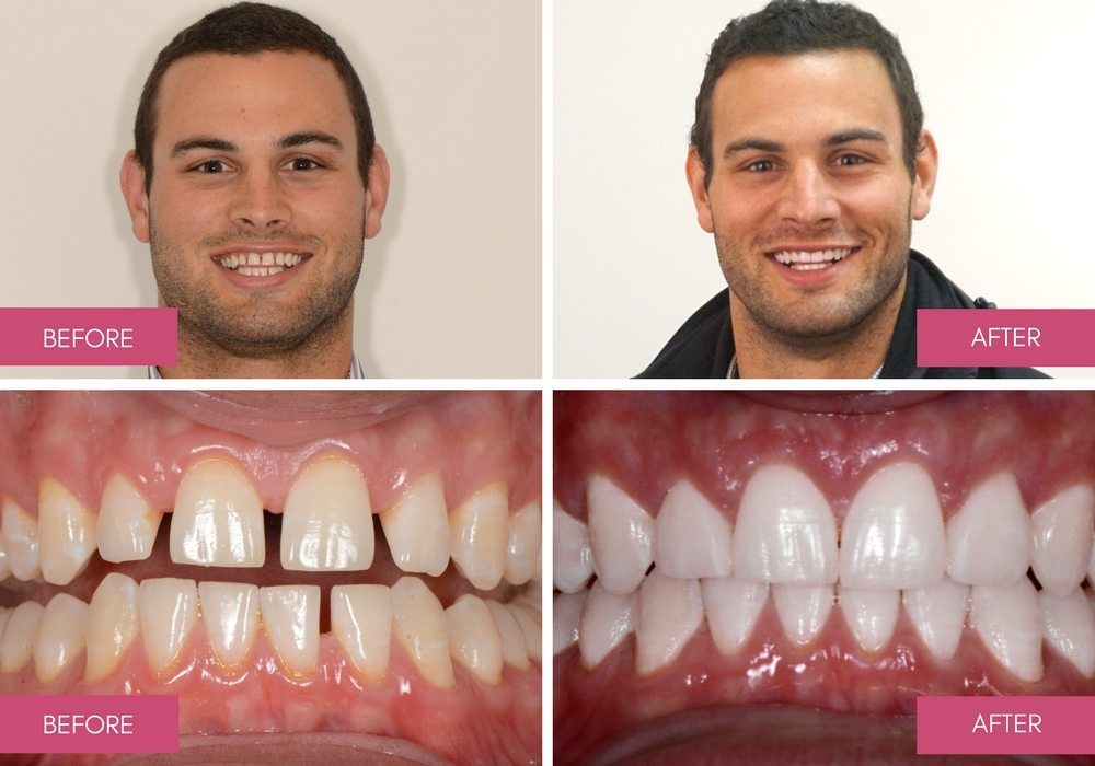 Invisalign Provider Melbourne - Alternative to Braces