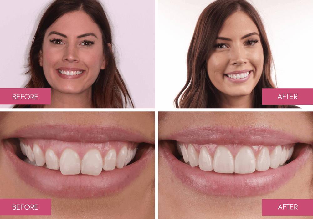 Gum Recontouring Melbourne - From Gummy Smiles To Showing