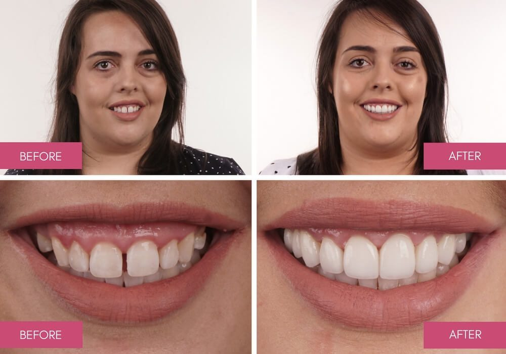 Before and After Dental Treatment Gallery - Melbourne Dentists