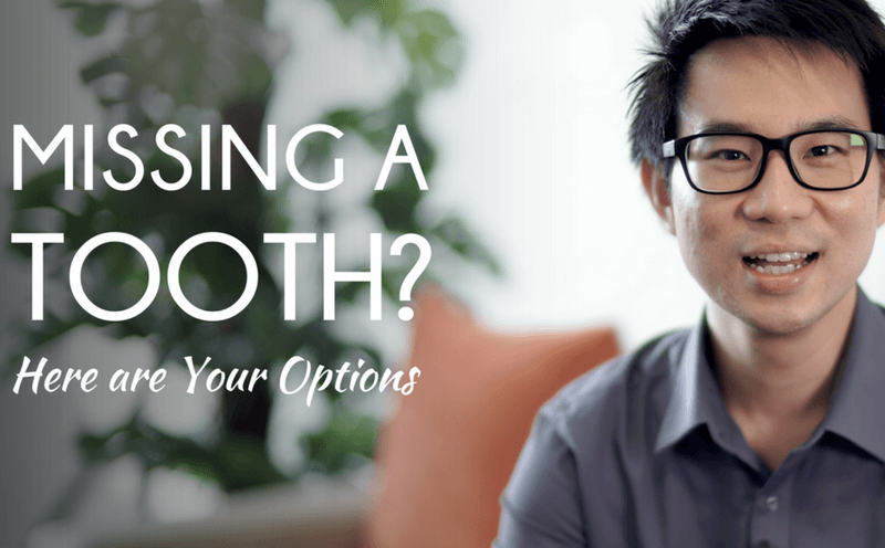 Missing a Tooth? Here Are Your Options