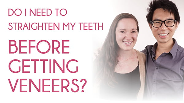 Do I Need To Straighten My Teeth Before Getting Veneers?