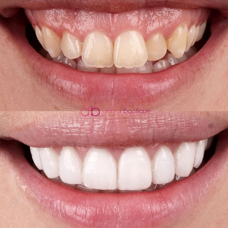 B51 (Teeth) – Patient 12