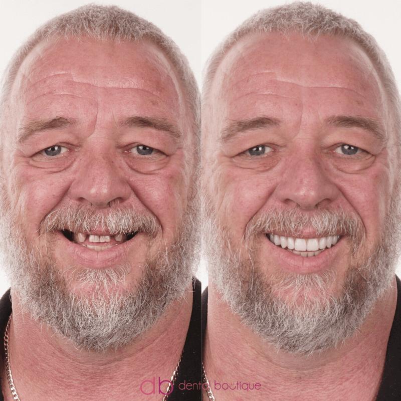 Patient10 Image1 DentalImpants Australia