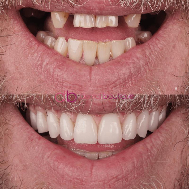 Patient10 Image2 DentalImpants Australia
