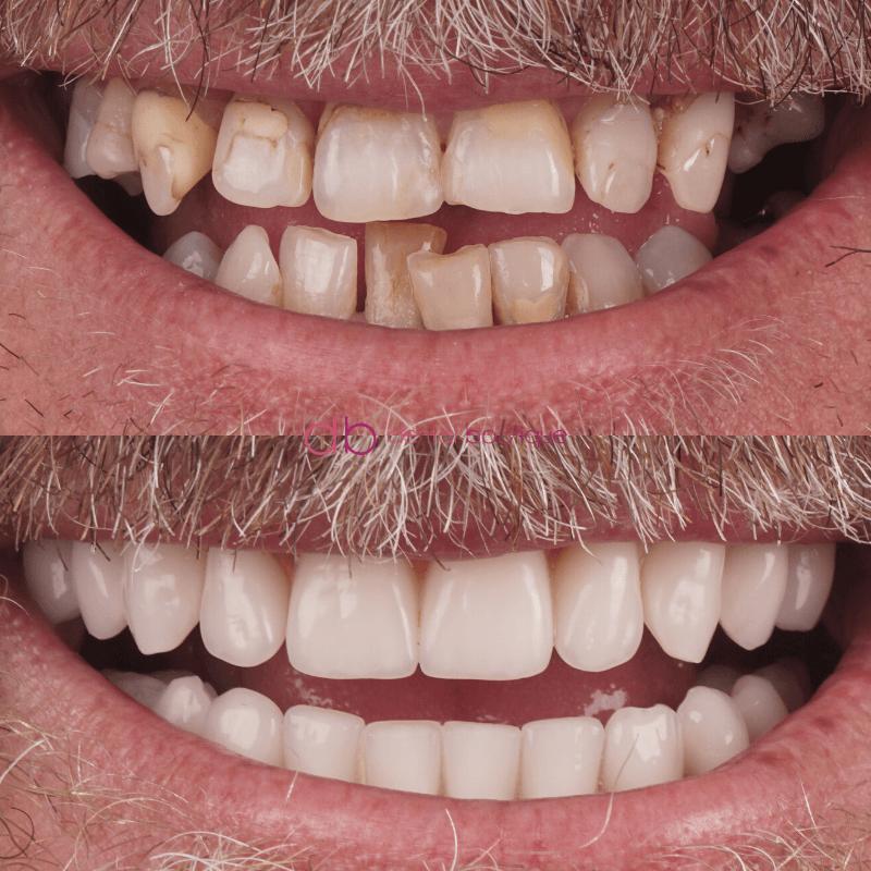 Patient3 Image2 DentalImplants Australia