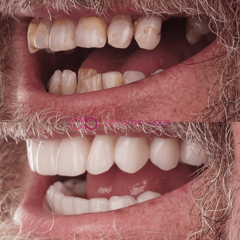 Patient3 Image3 DentalImplants Melbourne