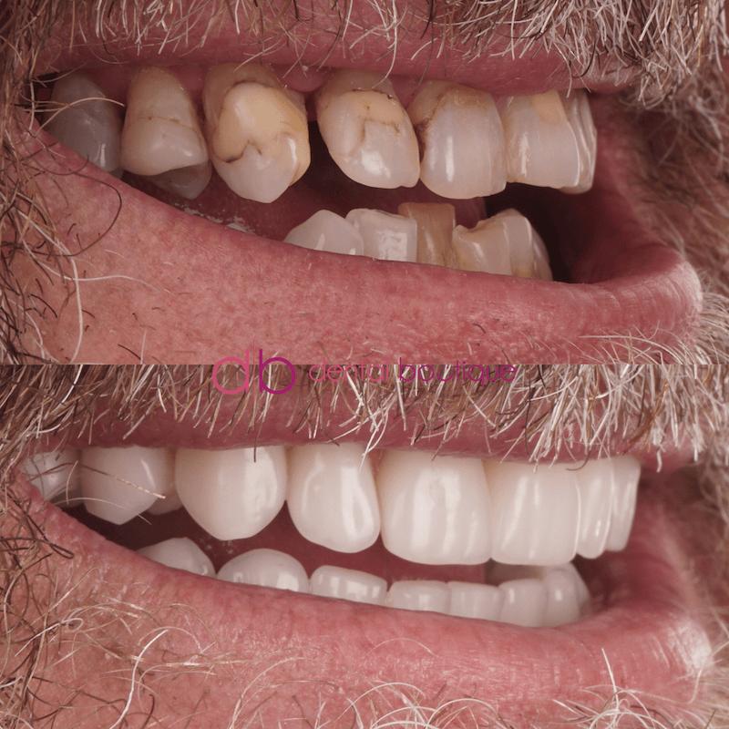 Patient3 Image4 DentalImplants Melbourne