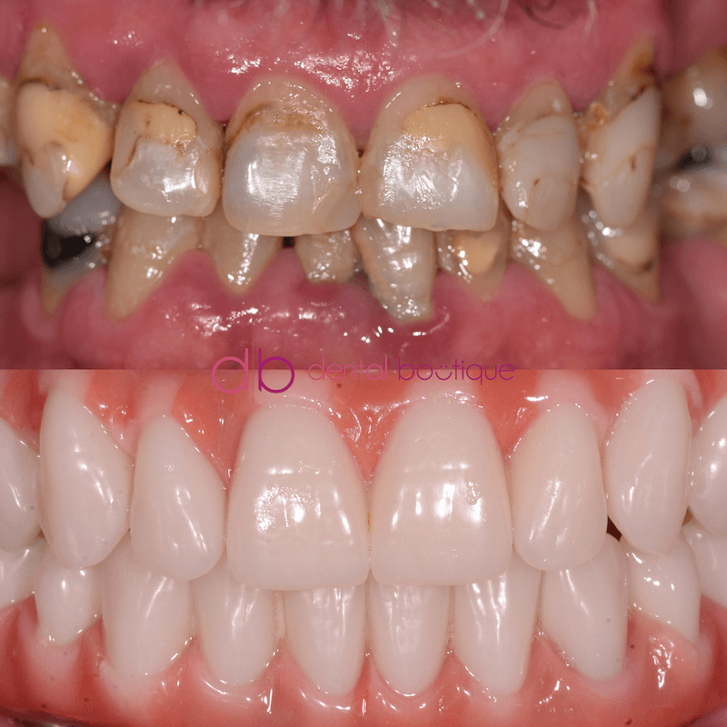 Patient3 Image5 DentalImplants Melbourne