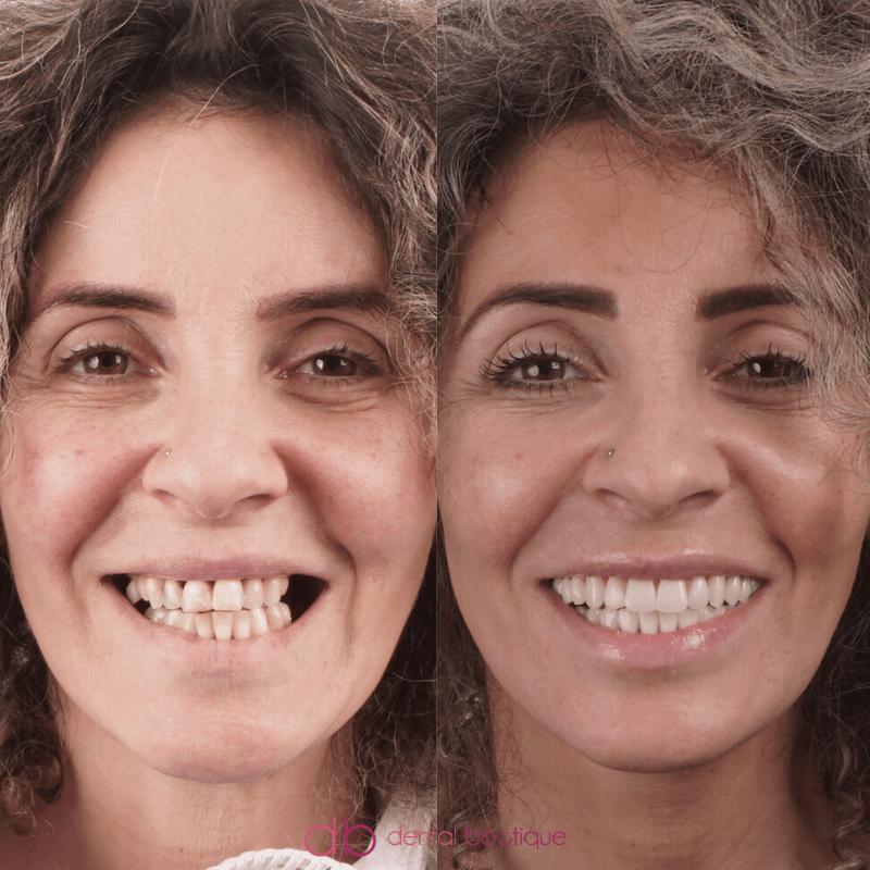 Patient4 Image1 DentalImpants Victoria