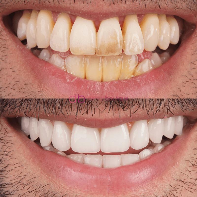 Patient6 Image2 DentalImplants Melbourne