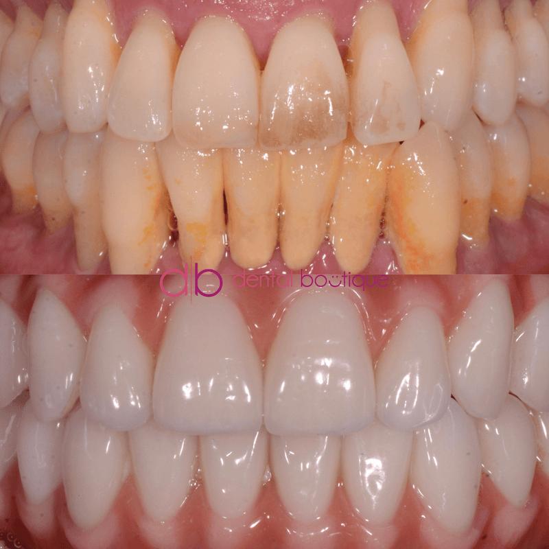 Patient6 Image3 DentalImplants Melbourne