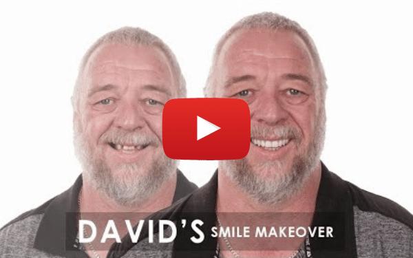David's Smile Makeover