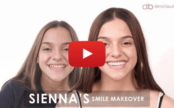 Sienna's Smile Makeover