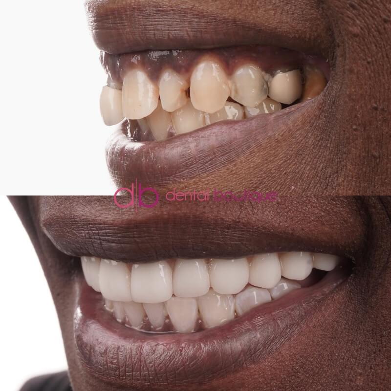 Patient 1 Image 4