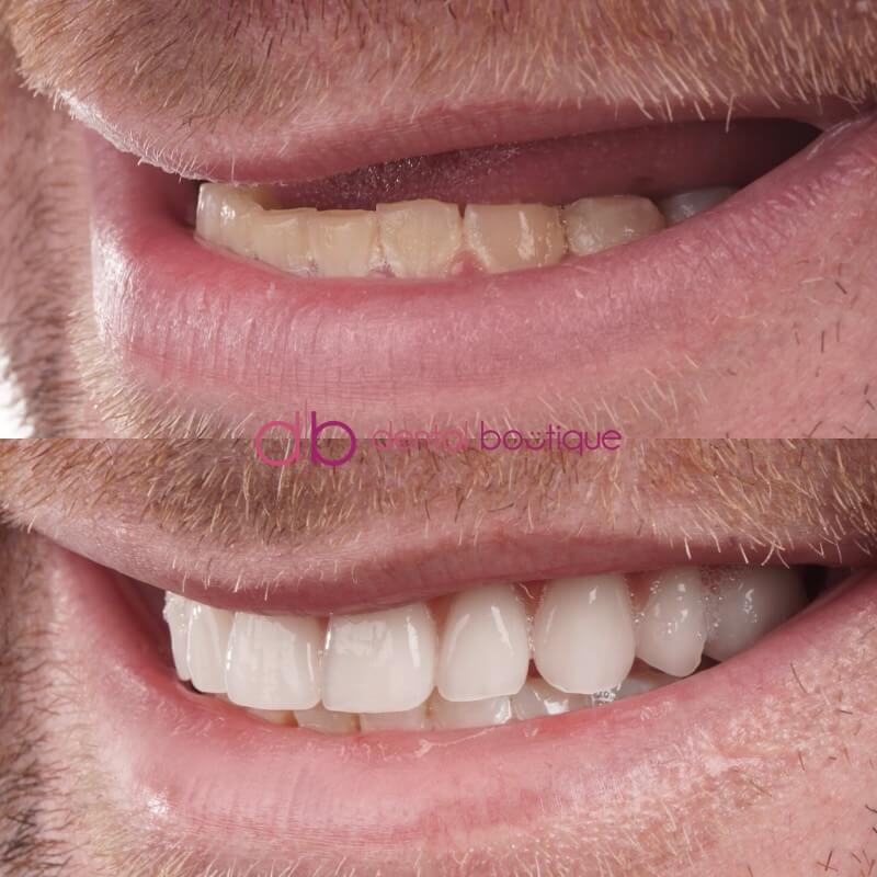 Patient 2 Image 3