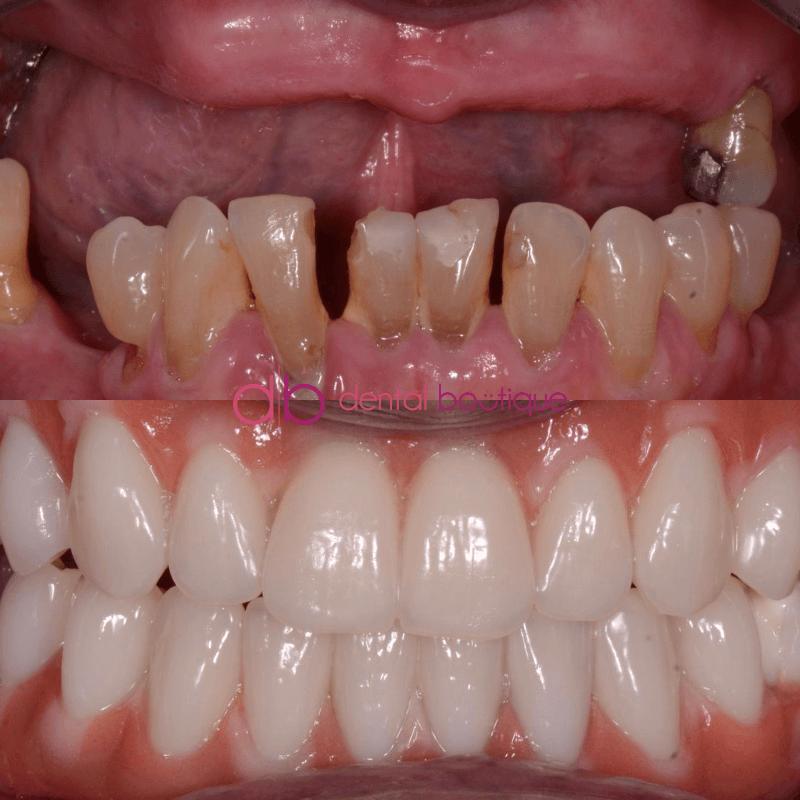 Patient 4 Image 2