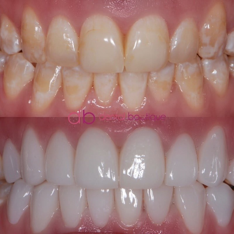 Patient 10 Image 1 Min
