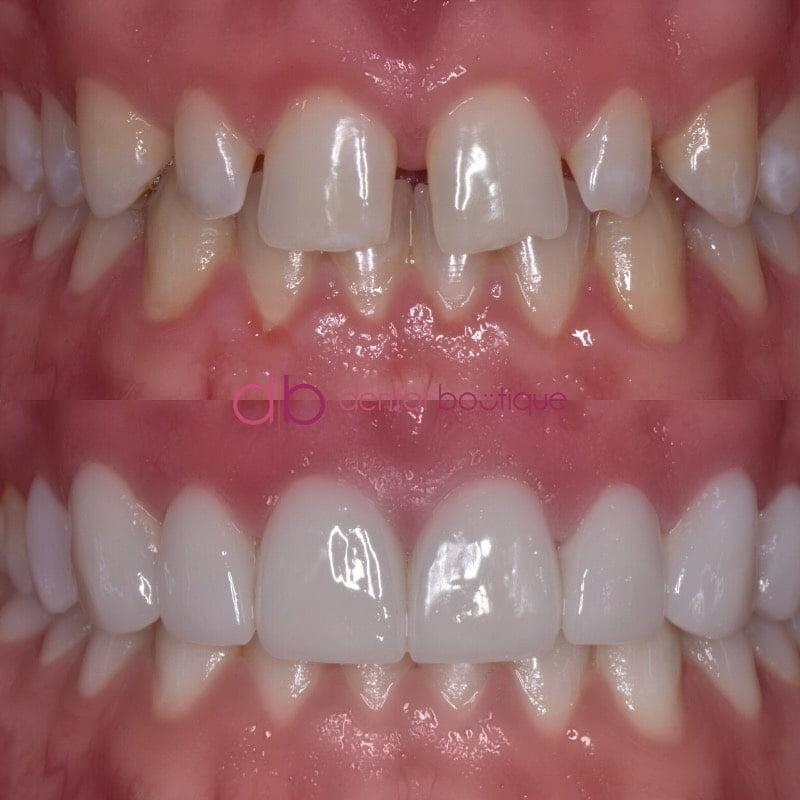 Patient 11 Image 5 Min