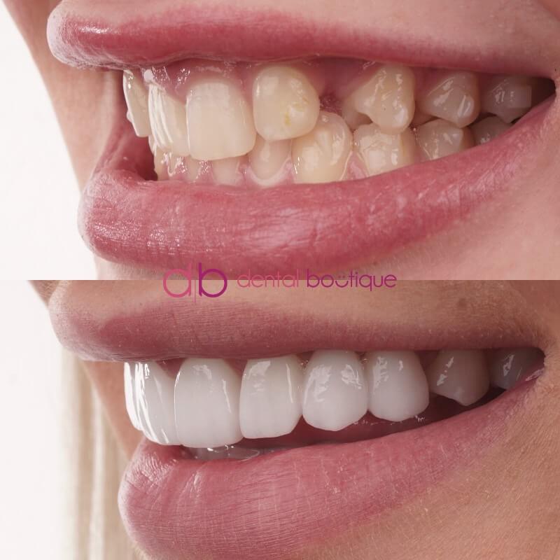 Patient 5 Image 3