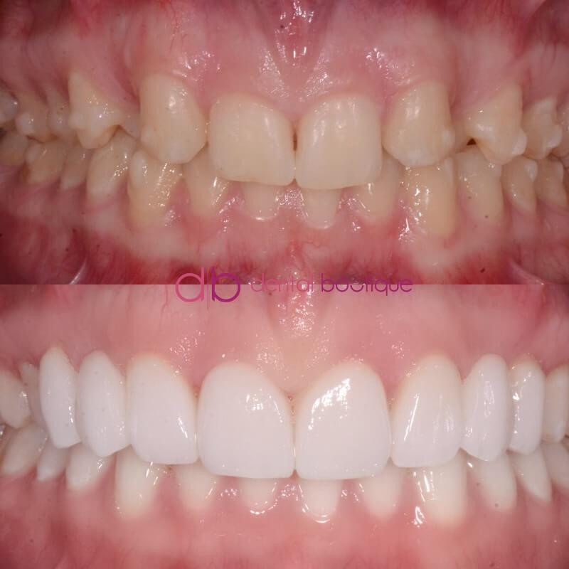 Patient 5 Image 5