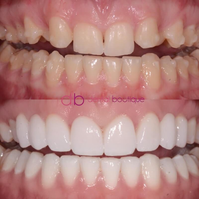 Patient 5 Image 6